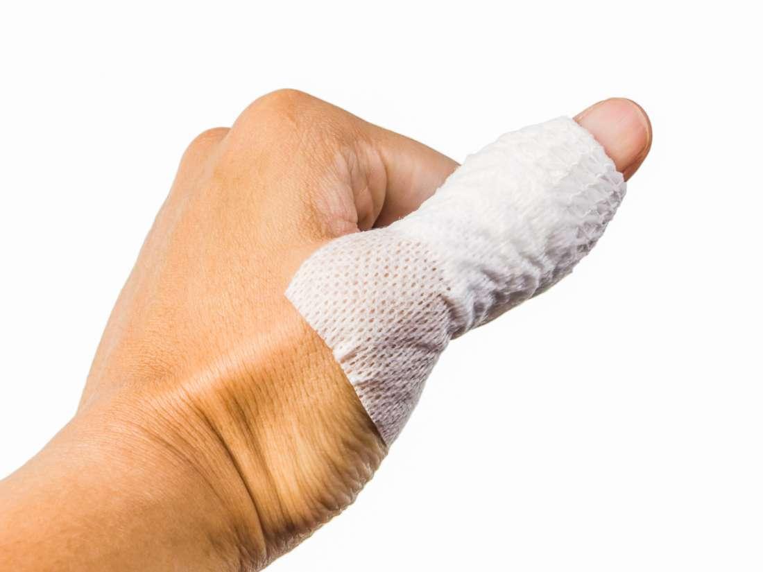 Trigger Thumb Surgery